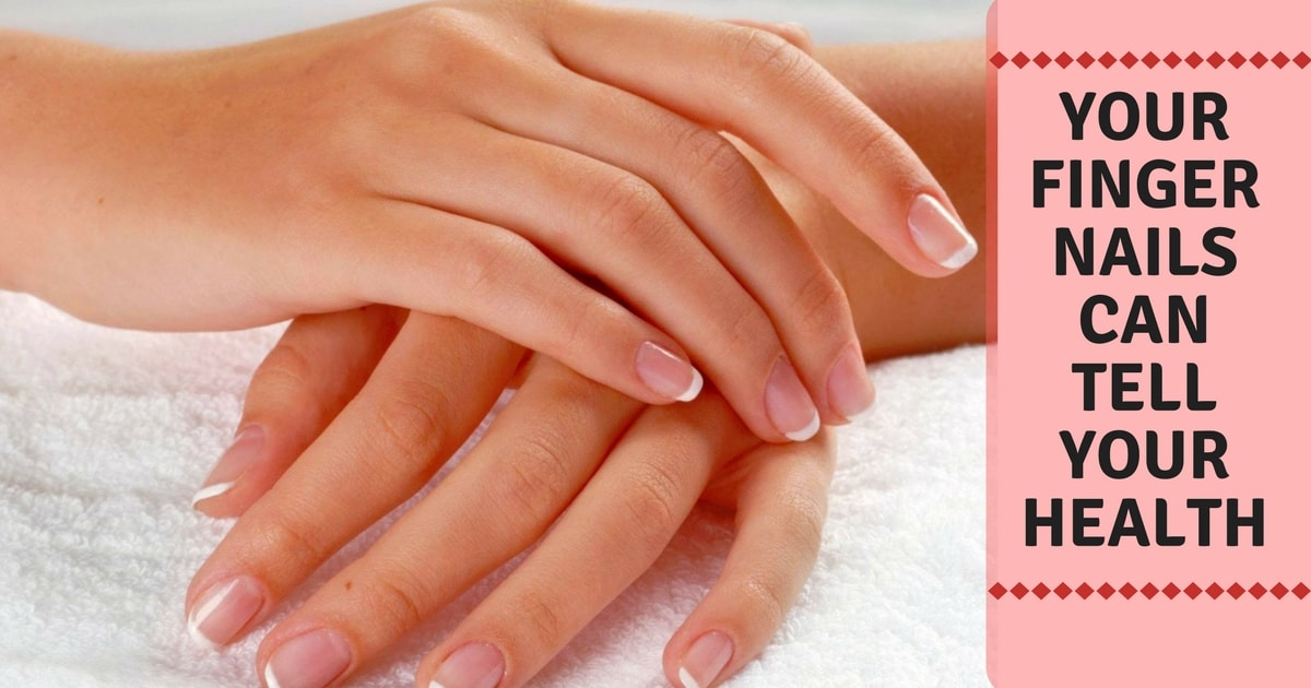 Do You Know That Your Nails Can Offer Clues To Overall General Health Have Changed Their Texture Shape And Color